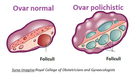 sindromul ovarului polichistic greutate